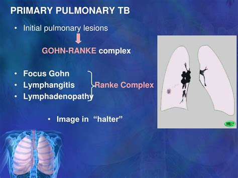 PPT - PULMONARY TUBERCULOSIS - RADIOLOGICAL IMAGES